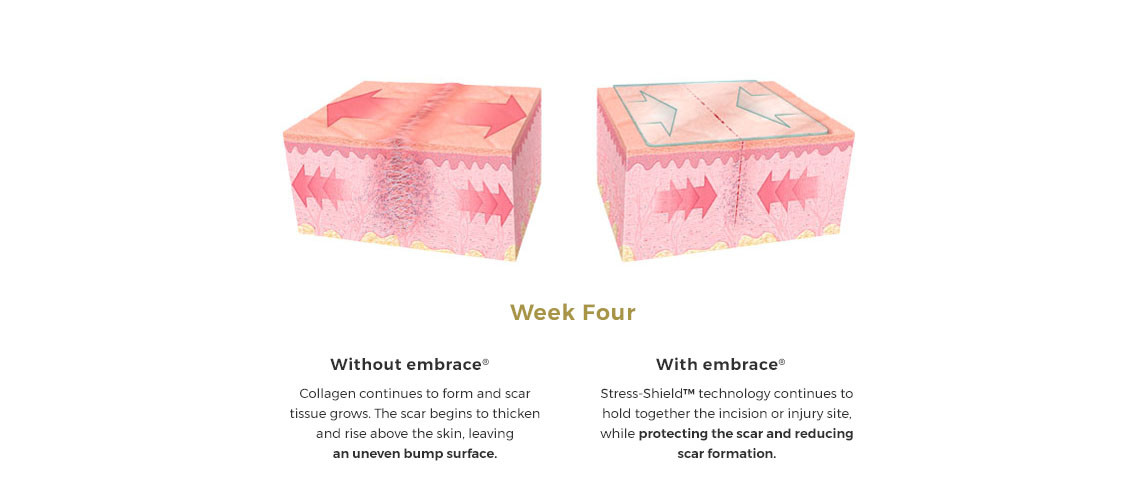 embrace scar therapy before and after. embraceslider3_new.jpg embrace scar therapy before and after