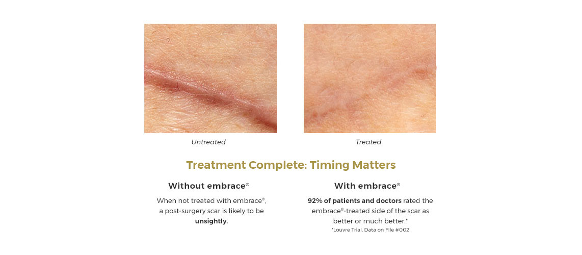 embrace scar therapy. embraceslider5_new__1_.jpg embrace scar therapy ,